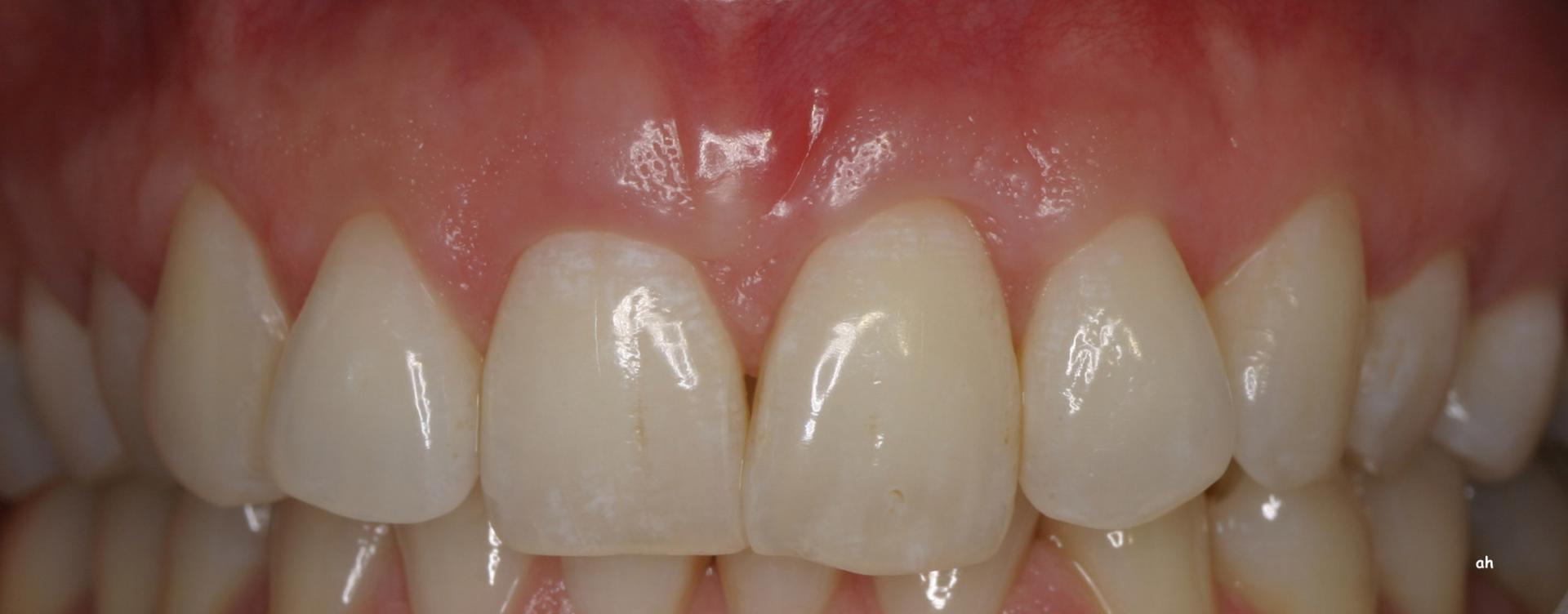 traitement des gencives dentiste lausanne pr sentation de biomat riaux alain haerri. Black Bedroom Furniture Sets. Home Design Ideas